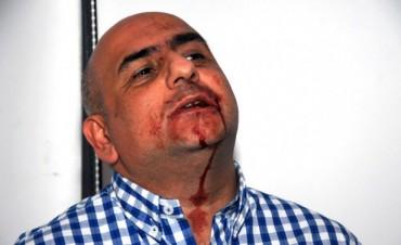 FRANCISCO DE NARVAEZ:  Agrede salvajemente a un periodista